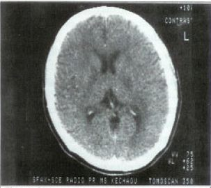 Figure 2. CT scan of the brain after treatment.
