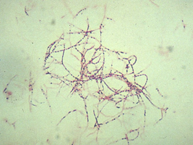 Figure 2. Gram stain nocardia. Nocardia appear as delicate, filamentous, branching, gram positive rods indistinguishable from antinomyces. Courtesy of Stanley W. Chapman.