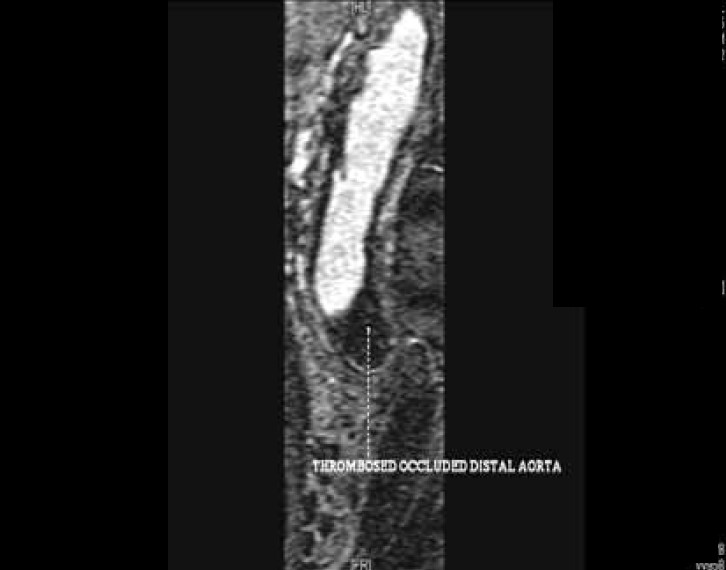 Figure 3. Total occlusion of distal aorta with large thrombus