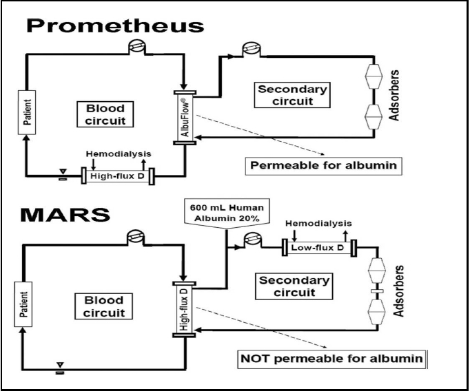 Figure 4: The comparison of design of MARS and Prometheus liver support systems