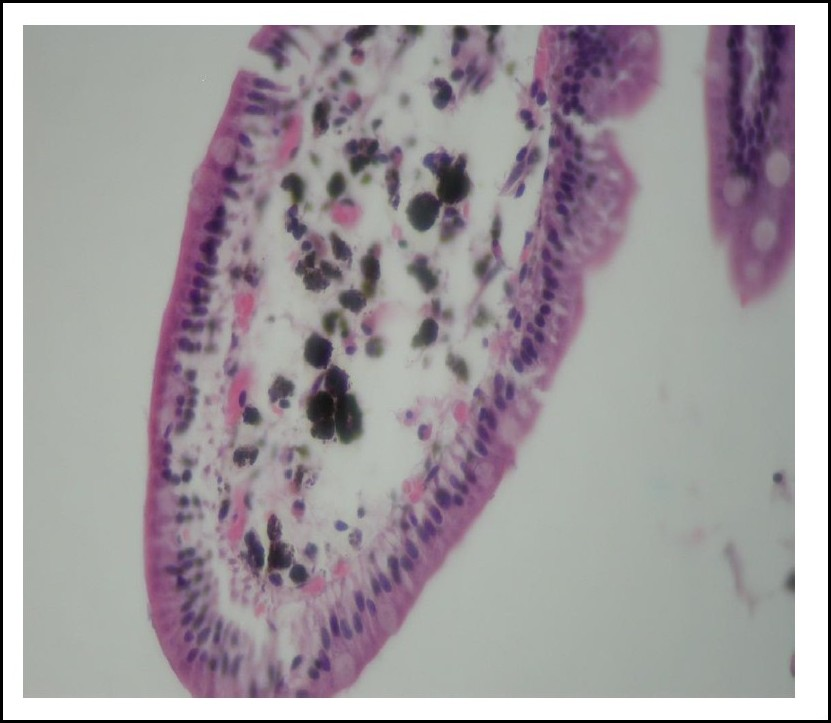 Figure 1. Morphology examination show dark black-brown granules present within macrophages located in the duodenal villous cores (haematoxylin & eosin)
