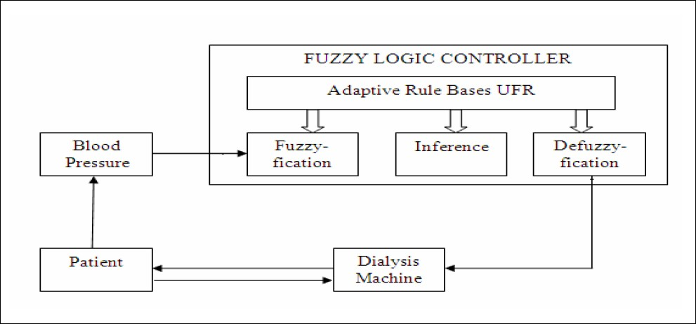 Figure 3 :Arterial Blood Pressure Biofeedback By Using Fuzzy Logic Control System