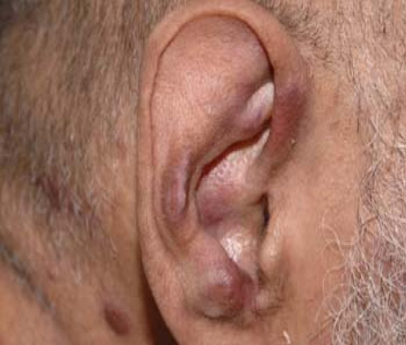 Figure 1. Violaceous skin nodules on the scalp, neck and the ear. There were similar lesions on the upper and lower limbs, trunk, and the hard palate