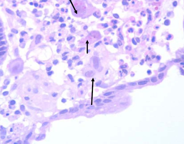 Figure 1. Esophageal biopsy showing mucosa moderately infiltrated by inflammatory cells, including large cells with large oval basophilic cytoplasm and occasional intranuclear and intracytoplasmic inclusions suggestive of CMV infection (H&E stain x100)