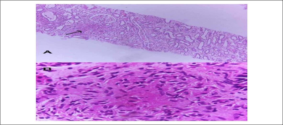 Figure 1 :A. (Hematoxyline and eosine stain, 100 x magnification) Light microscopic view showing diffuse