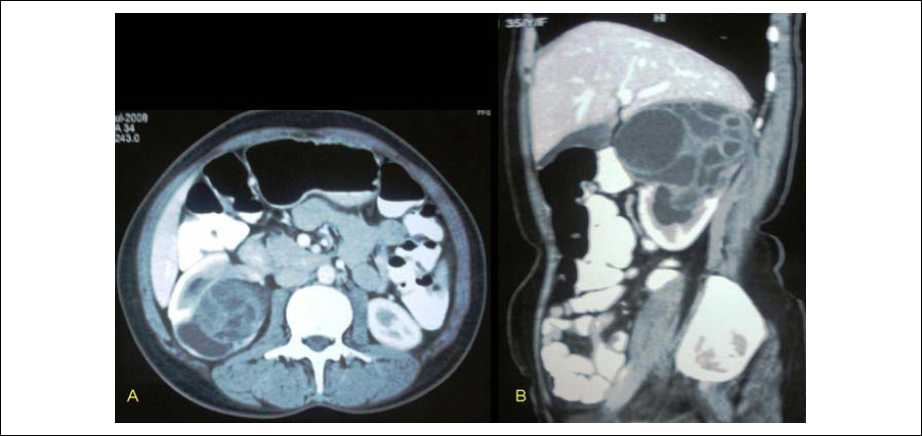 Figure 3 :Abdominal CT scan of same female done in July 2008, showing same findings as in Figure 2.