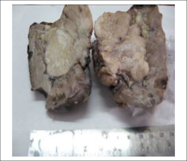 Figure 1: Sarcomatoid renal cell carcinoma (SRCC): Gross examination showing a firm, well-circumscribed, yellowish white mass involving the renal pelvis.