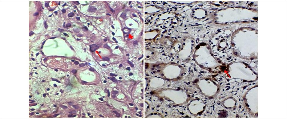 Figure 1: Left: Hematoxylin and eosin, ×200, intranuclear inclusions in the tubular epithelial cells; the