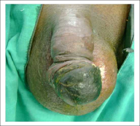 Figure 1: Partial gangrene of penis.