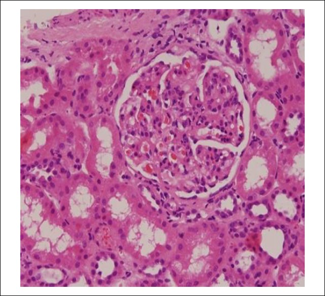 Figure 1: Photomicrograph from renal biopsy showing a glomerulus with increase in mesangial cellularity. (Hematoxylin & Eosin, ×200)