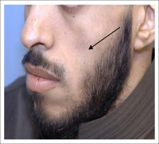 Subcutaneous facial fat loss Awesome