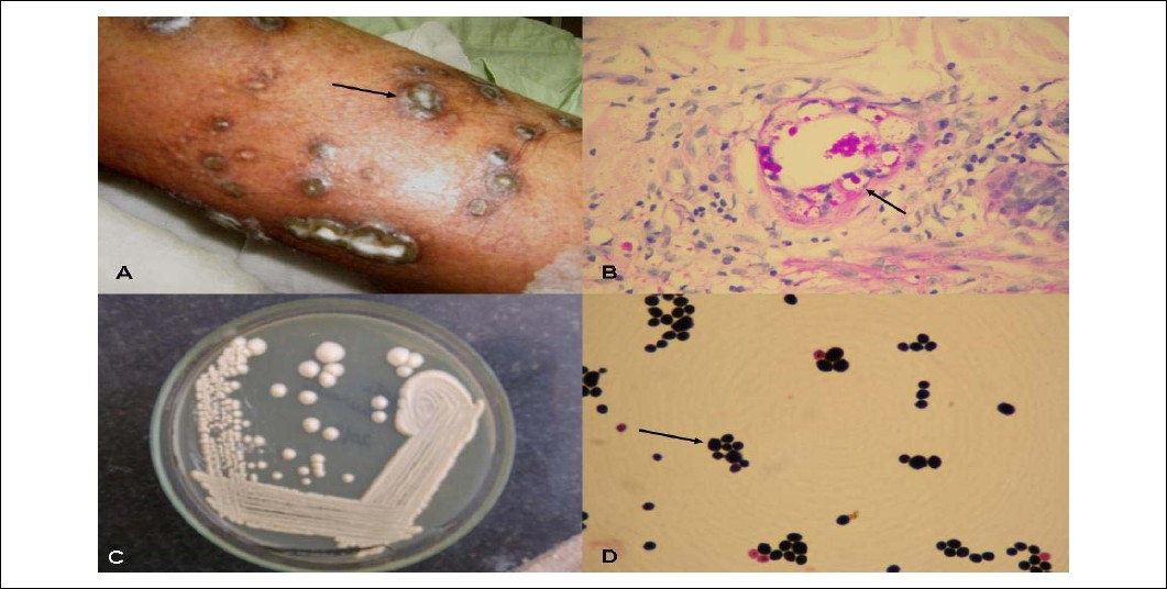 Cutaneous cryptococcosis.