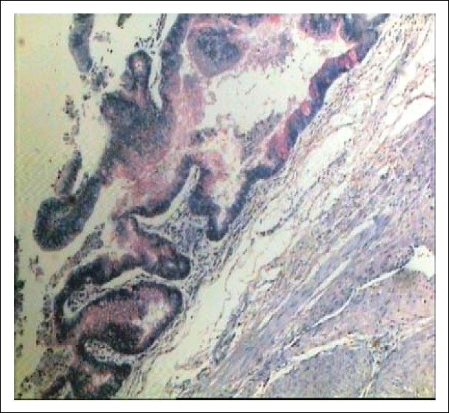 Figure 2: Photomicrograph shows a tumor lined by mucin-secreting columnar epithelium (Mucicarmine, ×40).