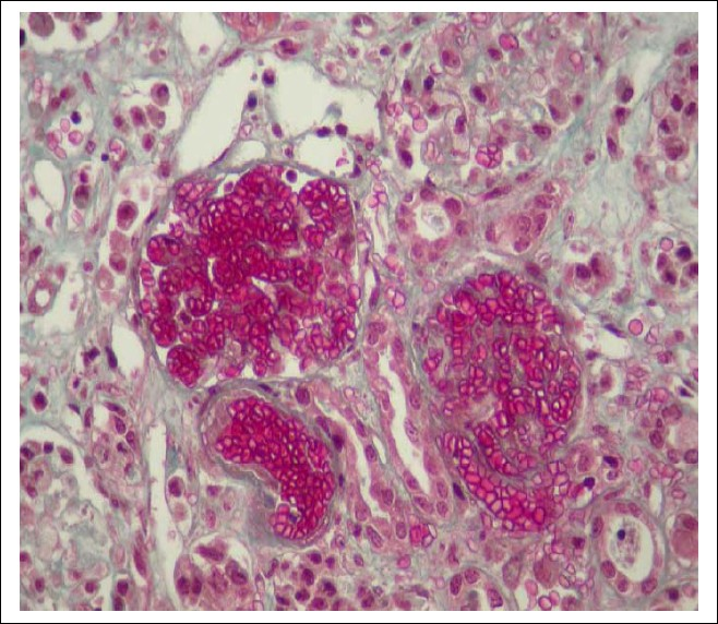 Figure 1: Arteriolar and glomerular thombosis (Masson's trichromic stain).