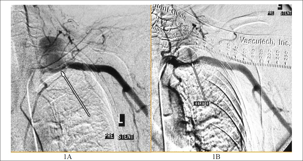 Figure 1: Thoracic exit syndrome (TES) after insertion of a jugular vein catheter. In Figure 1A, the left subclavian artery is vectored with a compressive pseudoaneurism and in Figure 1B, the leakage jet is clearly demonstrated.