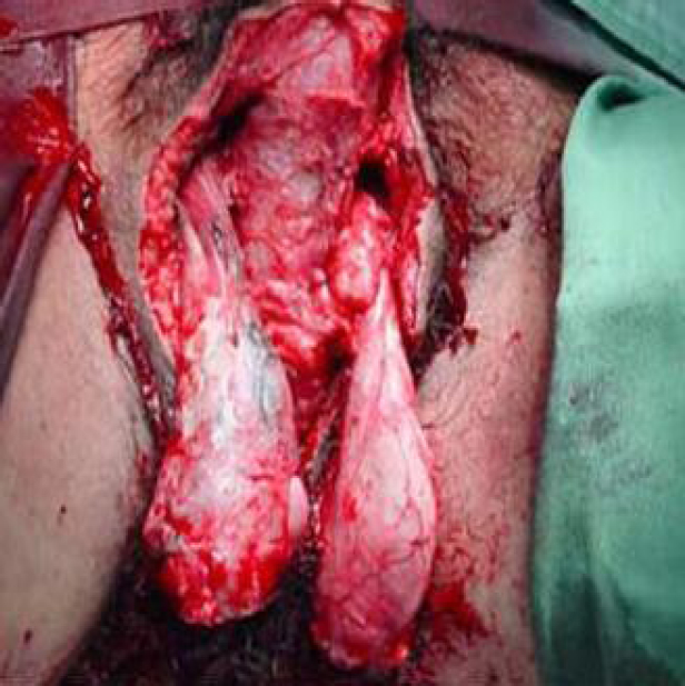 Figure 1: Scrotal area after extended surgical debridement (viable testes).