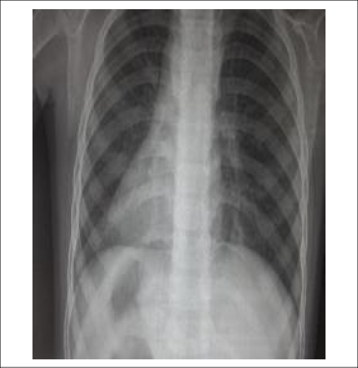 Figure 1: X-ray of the chest and abdomen showing dextrocardia with liver shadow on the left side.