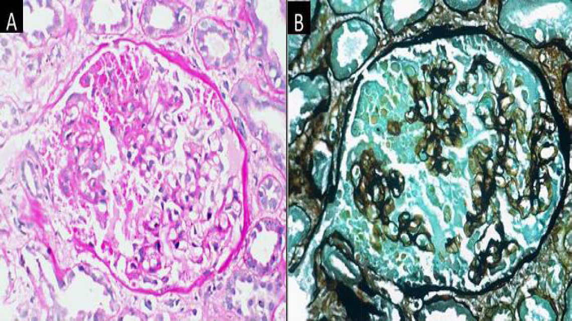 Figure 1: Renal allograft biopsy on day-30 posttransplant in a patient of primary focal segmental glomerulosclerosis showing collapsing glomerulopathy with collapse of part of the glomerular tuft accompanied by proliferation of visceral epithelial cells and presence of prominent resorption droplets (A – PAS, ×400; B – PSM, ×400).