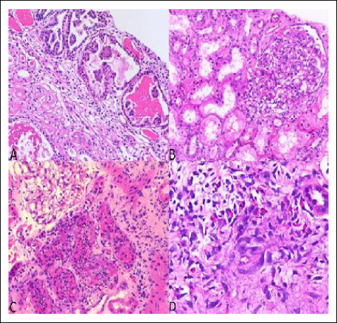 Clinical And Histological Correlation Of Diabetic Nephropathy
