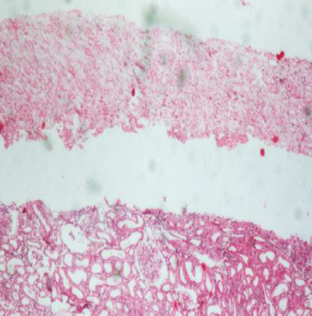 Figure 2: Histopathology of renal biopsy showing diffuse necrosis of medulla on H and E (low power).
