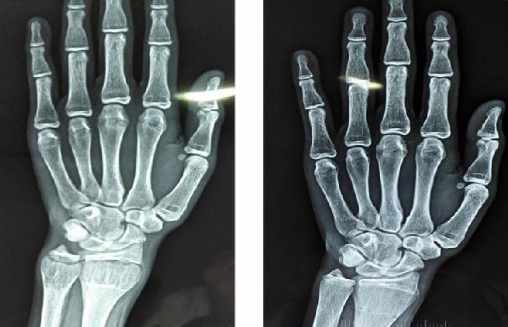 Figure 5: X-ray of the left hand before and 3 months into therapy, showing significant correction of rachitic deformity.