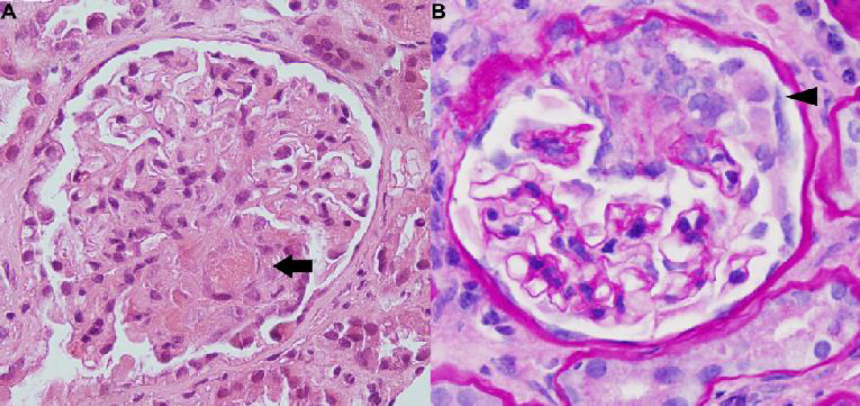 Figure 1: Renal biopsy in a patient with hydralazine-induced ANCA associated vasculitis. (a). Light microscopic examination with Hematoxylin and Eosin stain demonstrating segmental necrotizing glomerulonephritis with obliteration of the capillary lumen by fibrinous material (arrow). (b) Periodic acid–Schiff stain demonstrating cellular crescents (arrowhead) (×40).