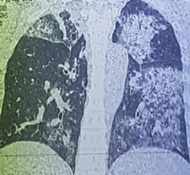 Figure 3: Coronal section of a lung computed tomography scan without injection of iodinated contrast showing parenchymal condensations with bilateral crazy paving appearance.