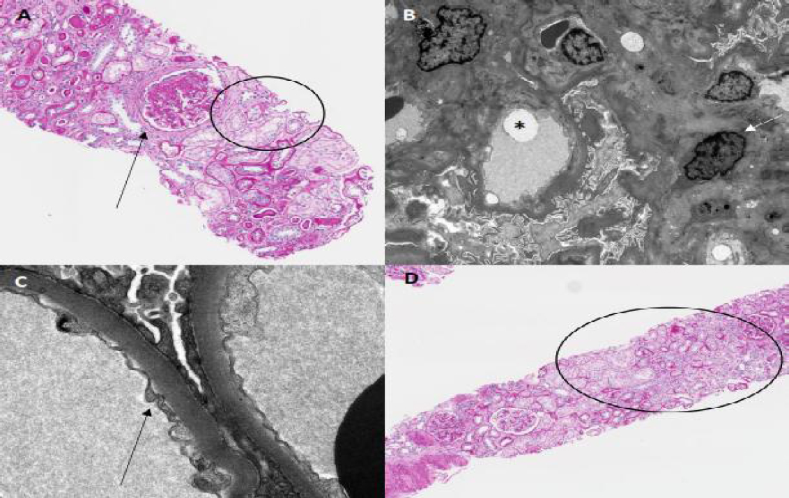 Figure 3: (a) Diabetic glomerulosclerosis, focal and segmental sclerosis (black arrow), mild acute tubular injury (circled) without another glomerular disease. LM, H and E, 20, (b) EM: Mesangial expansion (white arrow) and lipid droplets (starred) suggestive of diabetic glomerulosclerosis, (c) EM: mildly thickened basement membrane due to diabetic nephropathy (black arrow), (d) Striped tubular atrophy (circled) (suggestive of chronic calcineurin inhibitor toxicity) and thick tubular basement membranes (suggestive of diabetes mellitus). The mesangium is also mildly expanded pointing to diabetic nephropathy.