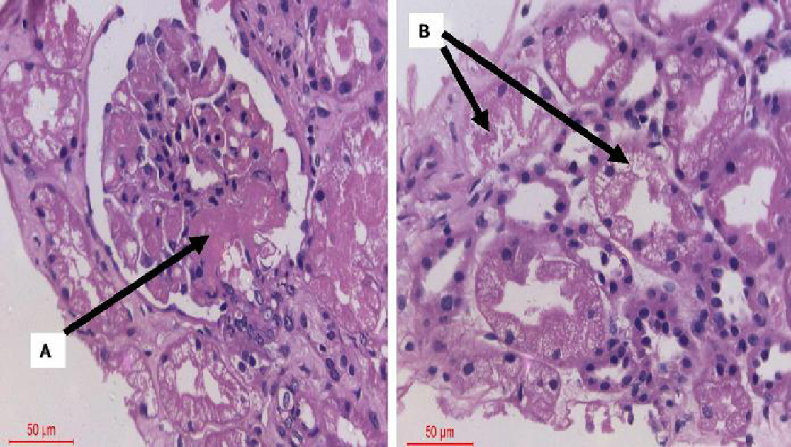 Figure 3: Post-transplant thrombotic microangiopathy.