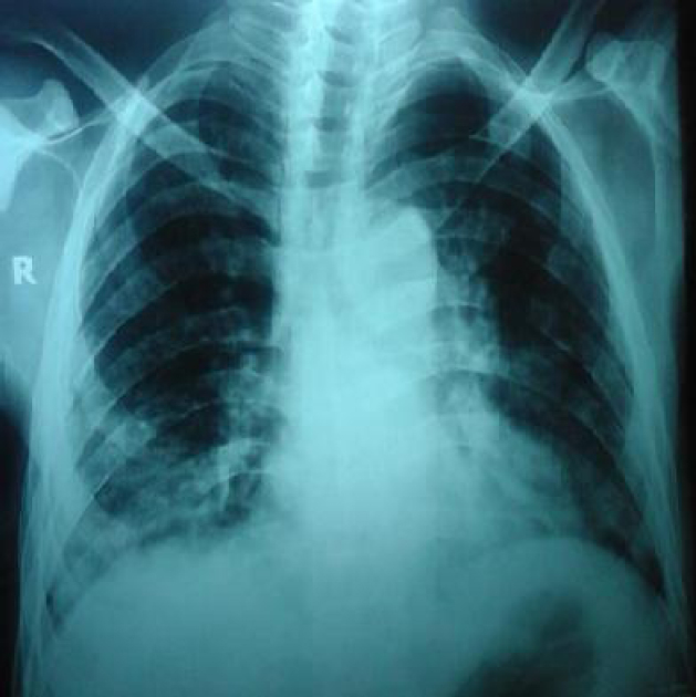 Figure 1: Chest X-ray postero-anterior view showing bilateral pulmonary infiltrates.